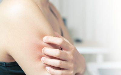 護膚品配方三級證書課程 (九)濕疹及炎症